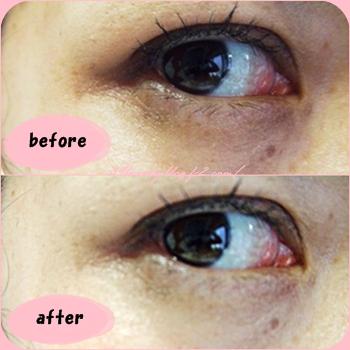 eyecare2.png