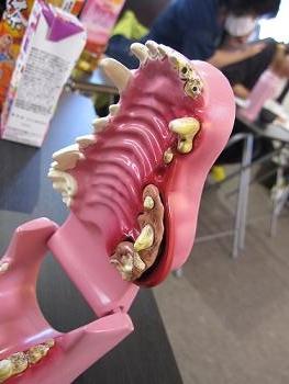 口腔模型 003
