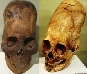 頭の長い頭蓋骨 (300x254)