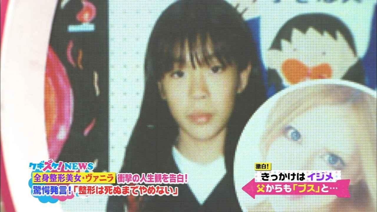 「上沼・高田のクギズケ」、整形サイボーグ・ヴァニラの整形前の顔