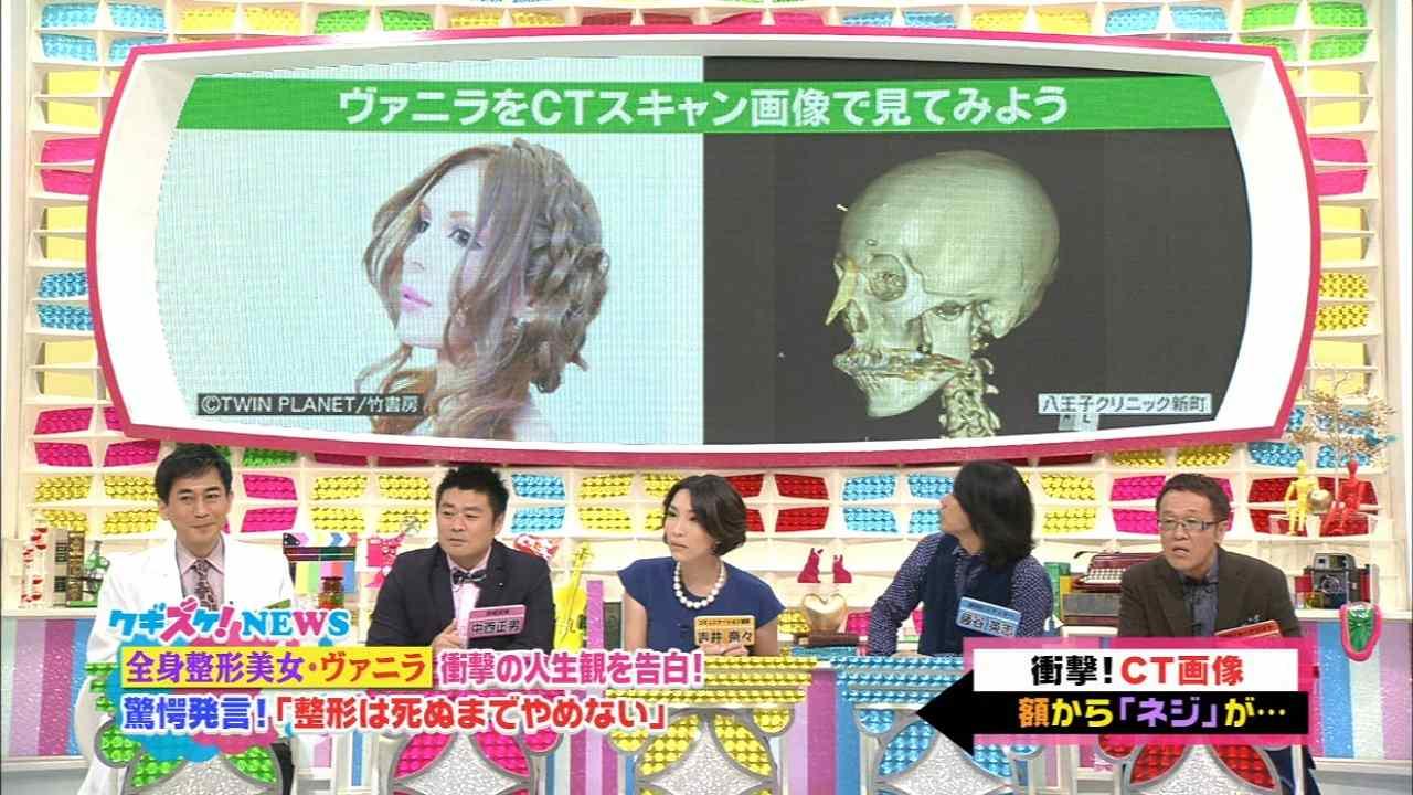 「上沼・高田のクギズケ」、整形サイボーグ・ヴァニラのCTスキャン画像
