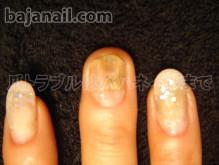 健康的で美しい爪を取り戻せ!smileynailのブログ