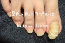 健康的で美しい爪を取り戻せ!smileynailのブログ-長すぎる右足の爪