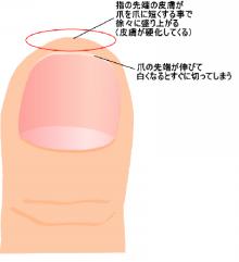 健康で美しい爪を取り戻せ!