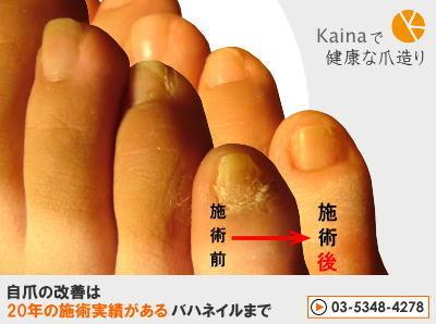 爪のお悩みまるごと解決 -足爪が大きくなる