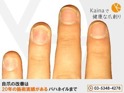 爪のお悩みまるごと解決 -ネイルチップ・接着剤で爪トラブル