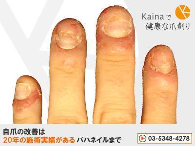 爪のお悩みまるごと解決-ネイルチップ・接着剤で爪トラブル