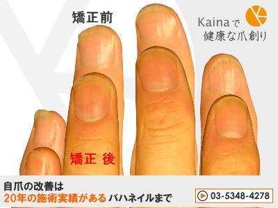 爪のお悩みまるごと解決  kainaで健康、元気な爪を創ろう-爪弱く柔らかい そり爪矯正