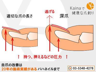 爪のお悩みまるごと解決  kainaで健康で元気な爪を創ろう-深爪圧のかかった指断面図