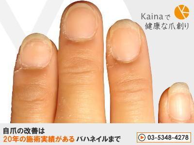 爪のお悩みまるごと解決  kainaで健康で元気な爪を創ろう-ジェルネイルを無理やり剥がして自爪にダメージ