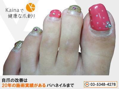 爪のお悩みまるごと解決  kainaで健康で元気な爪を創ろう-ジェルネイルで巻き爪悪化