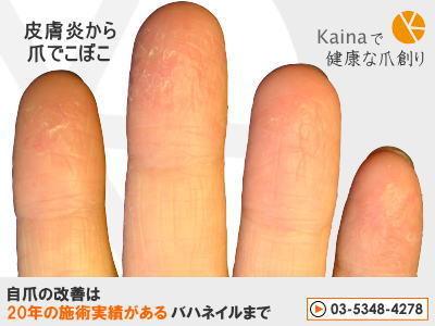 爪のお悩みまるごと解決  kainaで健康で元気な爪を創ろう-皮膚炎から爪でこぼこ ガタガタ