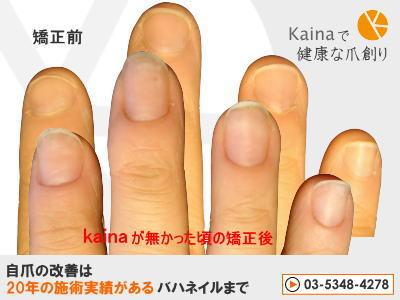 爪のお悩みまるごと解決  kainaで健康で元気な爪を創ろう-保湿不足の深爪矯正結果