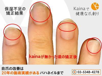 爪のお悩みまるごと解決  kainaで健康で元気な爪を創ろう-保湿不足の深爪矯正