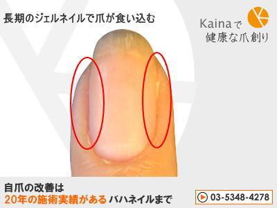 爪のお悩みまるごと解決  kainaで健康で元気な爪を創ろう-ジェルネイルで手が巻き爪