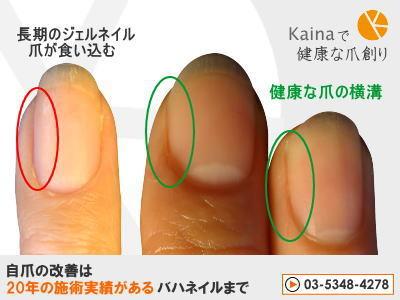 爪のお悩みまるごと解決  kainaで健康で元気な爪を創ろう-手の巻き爪 比較写真