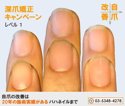 爪のお悩みまるごと解決  kainaで健康で元気な爪を創ろう-深爪矯正キャンペーン レベル1