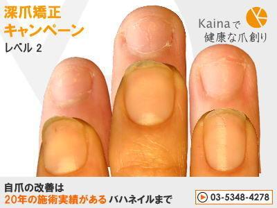 爪のお悩みまるごと解決  kainaで健康で元気な爪を創ろう-深爪矯正キャンペーン レベル2