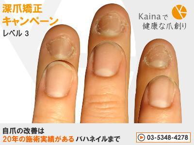 爪のお悩みまるごと解決  kainaで健康で元気な爪を創ろう-深爪矯正キャンペーン レベル3