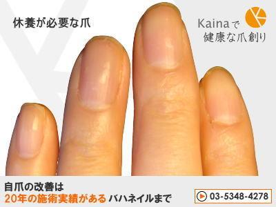 爪のお悩みまるごと解決  kainaで健康で元気な爪を創ろう-休養が必要な爪