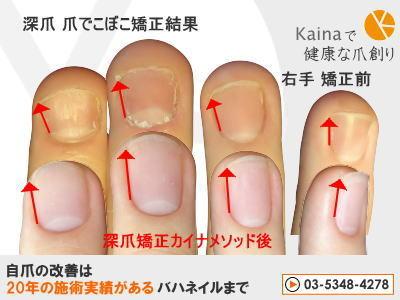 爪の変形 異常 深爪でこぼこ矯正
