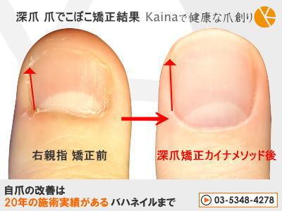 右親指 爪の形 深爪 矯正 きれい