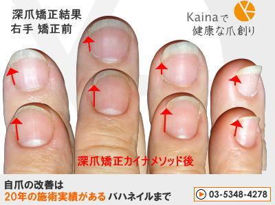深爪 爪のピンクを大きく 爪を噛む癖なおしたい