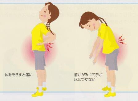 腰椎分離症01