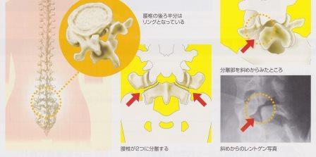 腰椎分離症02