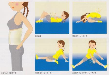 腰椎分離症03
