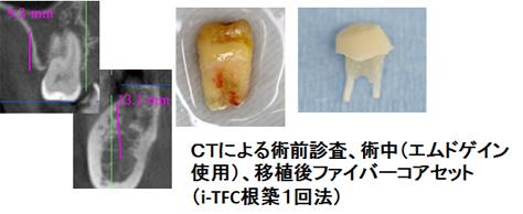 右下奥への歯牙移植