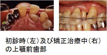 初診時、矯正治療中の上顎前歯部