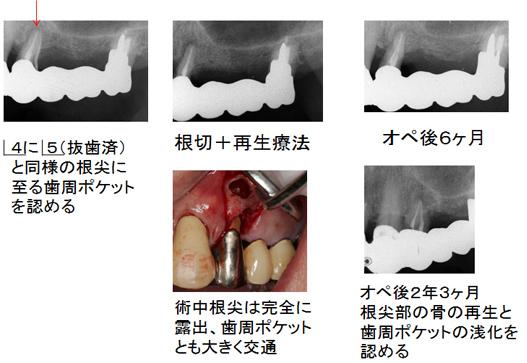 左上4の経過と再生療法後