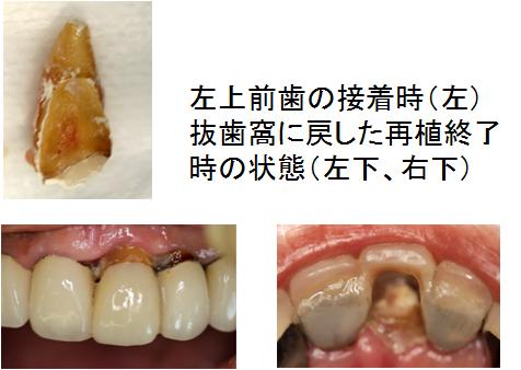 接着再植時の状態(左上1)