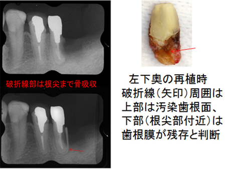 左下奥歯の状態