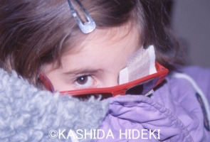 失明寸前の少女