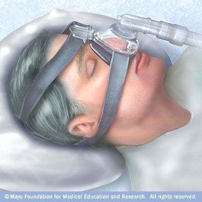 CPAP.jpg