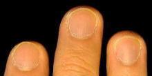健康的で美しい爪を取り戻せ!smileynailのブログ-軽度