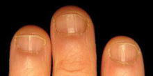 健康的で美しい爪を取り戻せ!smileynailのブログ-軽~中度