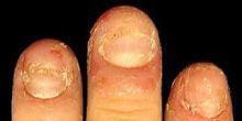 健康的で美しい爪を取り戻せ!smileynailのブログ-重度