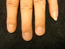 健康的で美しい爪を取り戻せ!smileynailのブログ-薄い爪左手