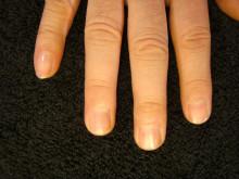 健康的で美しい爪を取り戻せ!smileynailのブログ-薄い爪右手