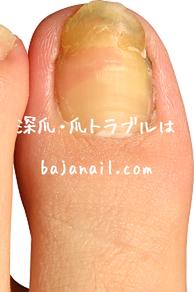 爪のお悩みまるごと解決 -足の爪を大きくしたい(巻爪め)