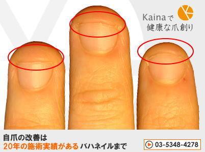 爪のお悩みまるごと解決  kainaで健康、元気な爪を創ろう-深爪を自力でなおす