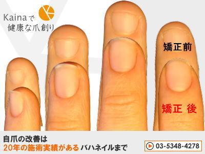 爪のお悩みまるごと解決  kainaで健康、元気な爪を創ろう-深爪・噛み爪は自力より深爪矯正