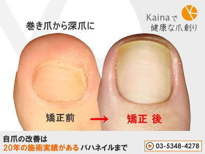 爪のお悩みまるごと解決  kainaで健康、元気な爪を創ろう-巻き爪から深爪に