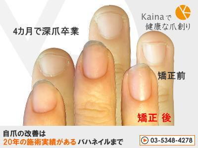 爪のお悩みまるごと解決  kainaで健康、元気な爪を創ろう-4ヶ月で深爪卒業