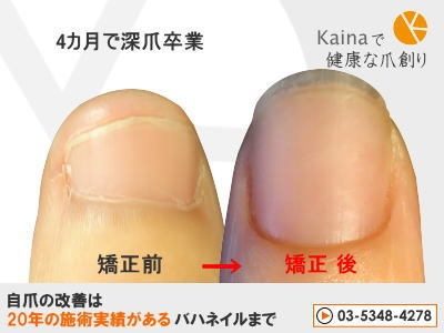 爪のお悩みまるごと解決  kainaで健康、元気な爪を創ろう-4か月で深爪卒業(親指)