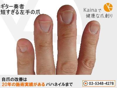 爪のお悩みまるごと解決  kainaで健康、元気な爪を創ろう-ギター奏者 左手の深爪