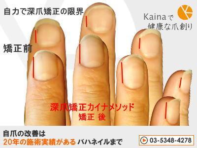 爪のお悩みまるごと解決  kainaで健康で元気な爪を創ろう-自力で深爪矯正 限界
